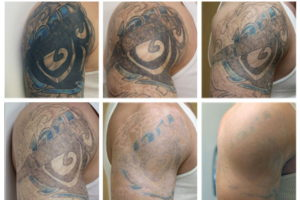 Profade1-2: Crema Idratante per Tatuaggi