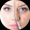 tea-tree-anti-acne
